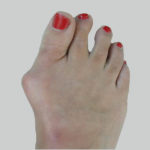 Foot People Lindsay Chiropody podiatry bunions treatment