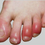 Foot People Lindsay Chiropody podiatry chilblains treatment