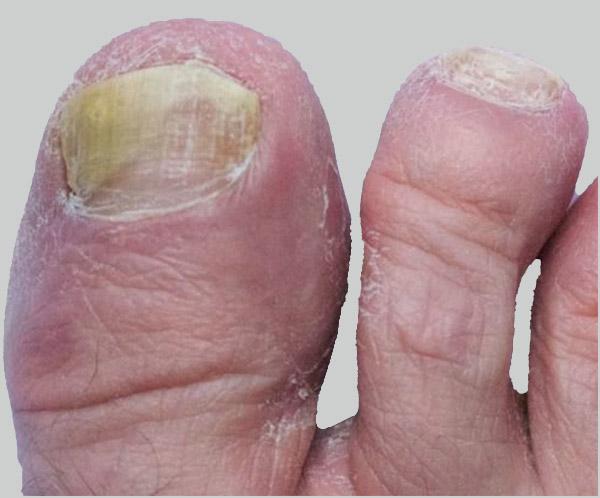 Foot People Lindsay Chiropody podiatry fungal nail