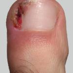 Foot People Lindsay Chiropody podiatry ingrowing toenail