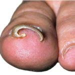 Foot People Lindsay Chiropody podiatry involuted toenail